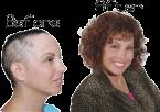 Female hair loss system